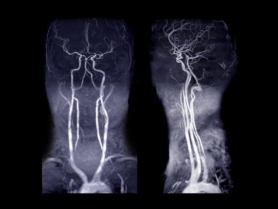 Rezonans angiografia tętnic szyjnych - jak przebiega, jak się przygotować