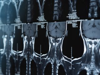 Rezonans magnetyczny kręgosłupa szyjnego - jak przebiega, jak się przygotować
