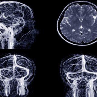 Rezonans angiografia głowy - jak przebiega, jak się przygotować