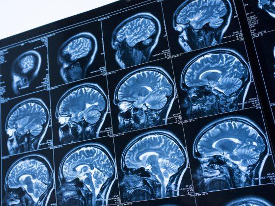 Rezonans magnetyczny z kontrastem - na czym polega, jak się przygotować