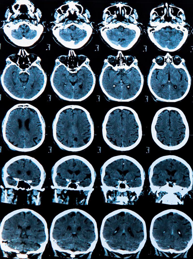 Rodzaje rezonansu - rezonans magnetyczny głowy