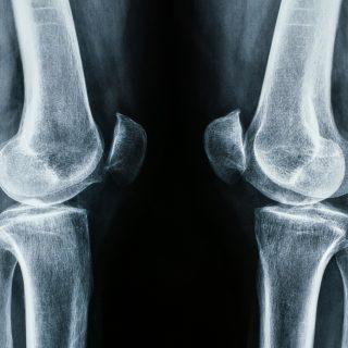 RTG kolan (rentgen stawu kolanowego) - jak przebiega, jak się przygotować
