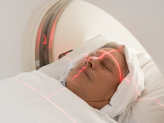 Tomografia komputerowa angio głowy - jak przebiega, jak się przygotować